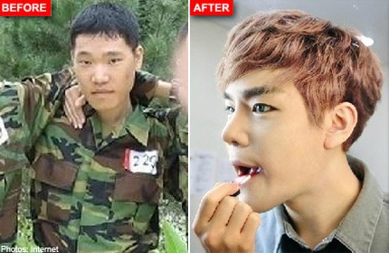 Think plastic surgery is only popular with girls in Korea? Take a