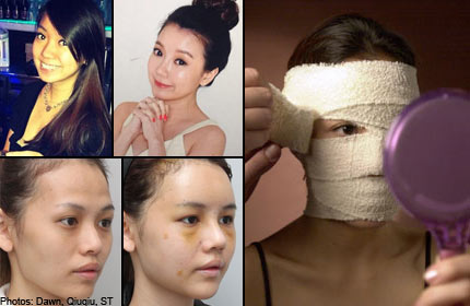 Bangkok or Korea? Where Singaporeans go for plastic surgery and why