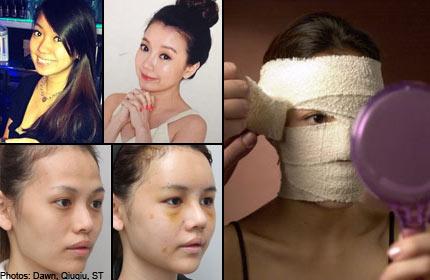Bangkok or Korea? Where Singaporeans go for plastic surgery