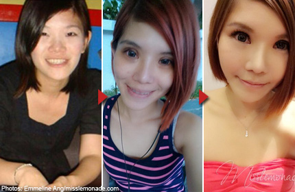 Botched jobs give S'porean blogger double-eyelid trouble