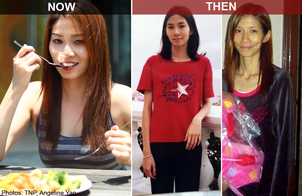 Miss World Singapore finalist on battling anorexia for 7
