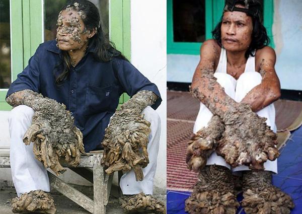 Epidermodysplasia verruciformis tree man before and after