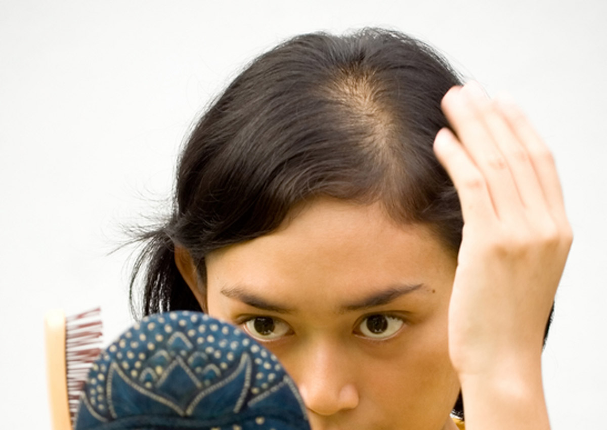 It S Time To Talk About Women And Hair Loss Health News Asiaone