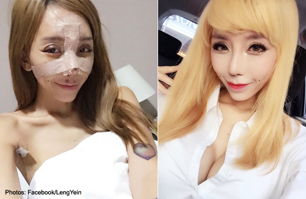 Malaysian DJ Leng Yein unveils new look after plastic surgeries in