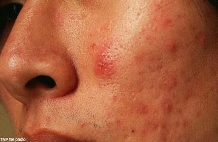How do I get rid of acne scars?, Health, Health, Health News