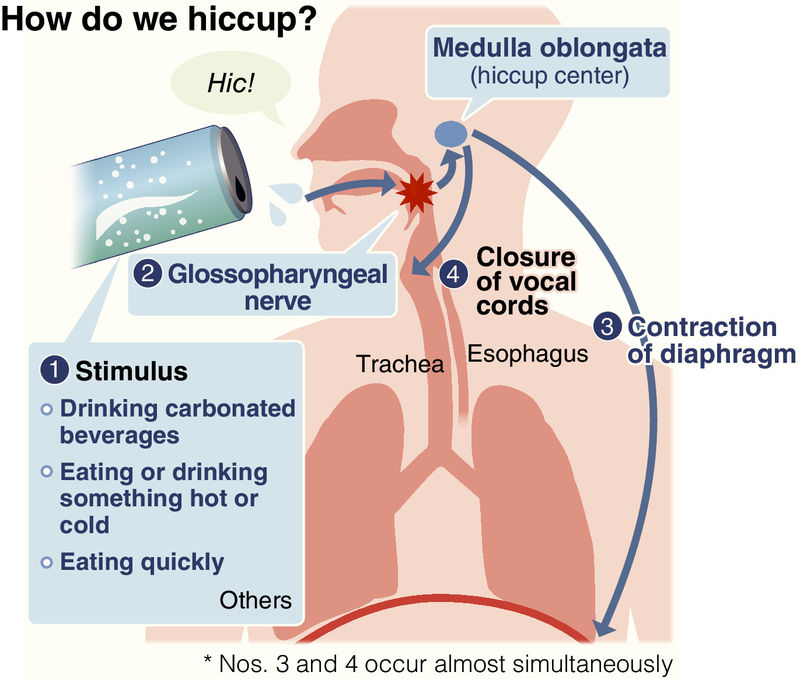 Howto deal with hiccups, Health News - AsiaOne
