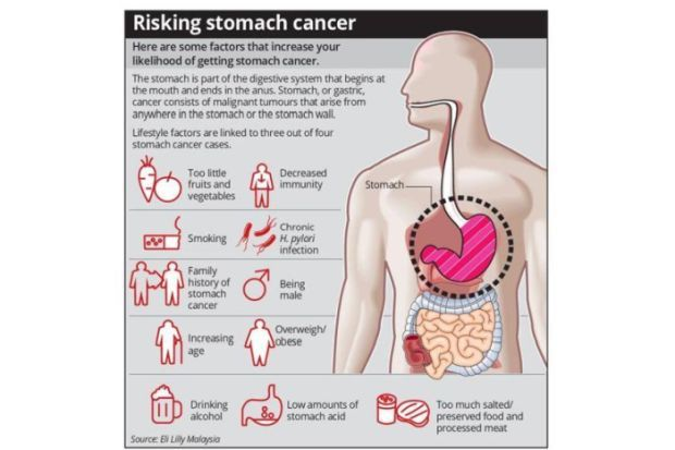 Stomach Cancer Chinese More At Risk Than Malays Health