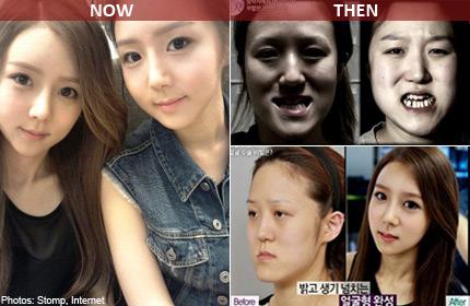 Twins Undergo Shocking Transformations On Korean Plastic Surgery