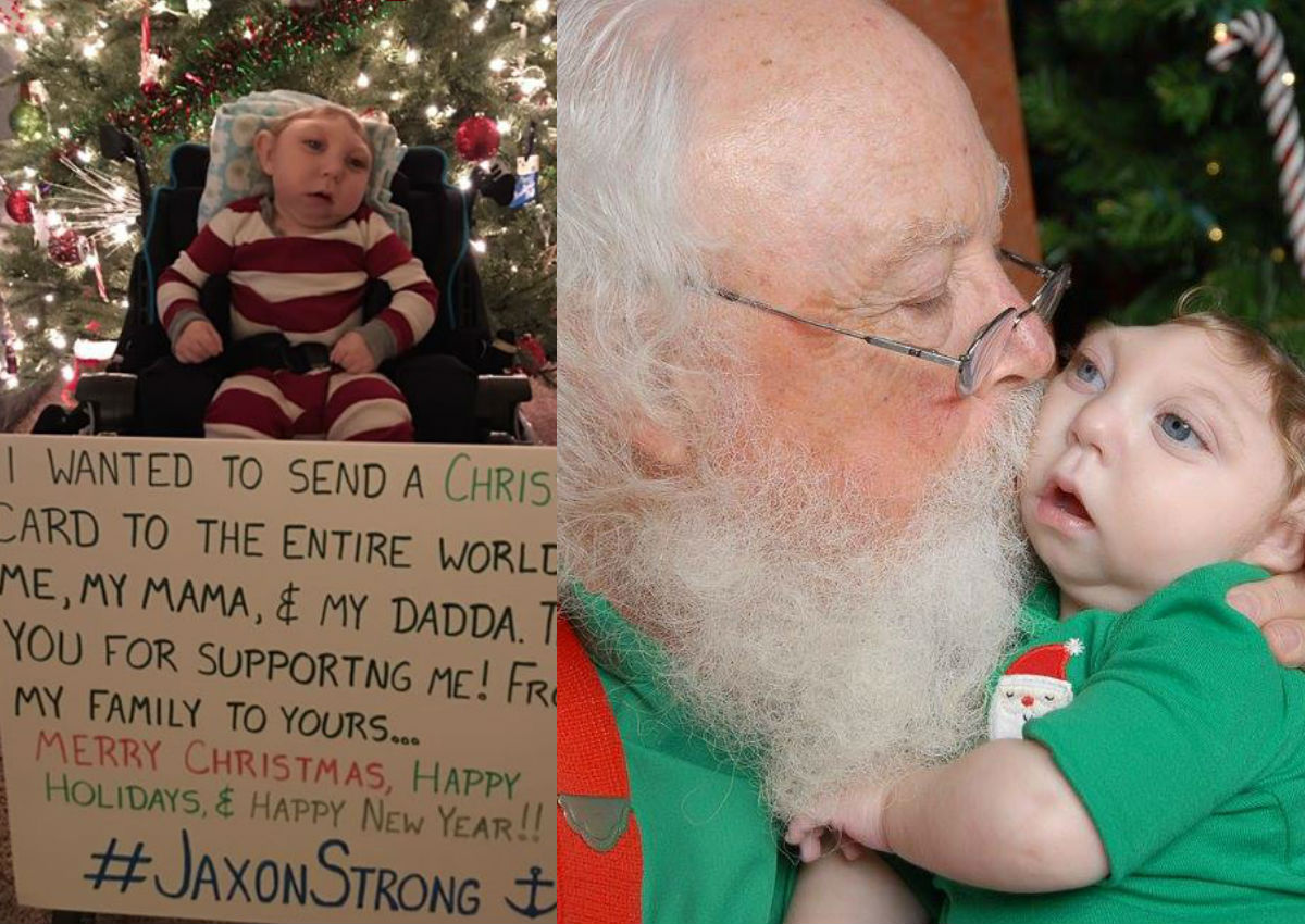 Miracle baby with malformed brain poses with touching Christmas card ...