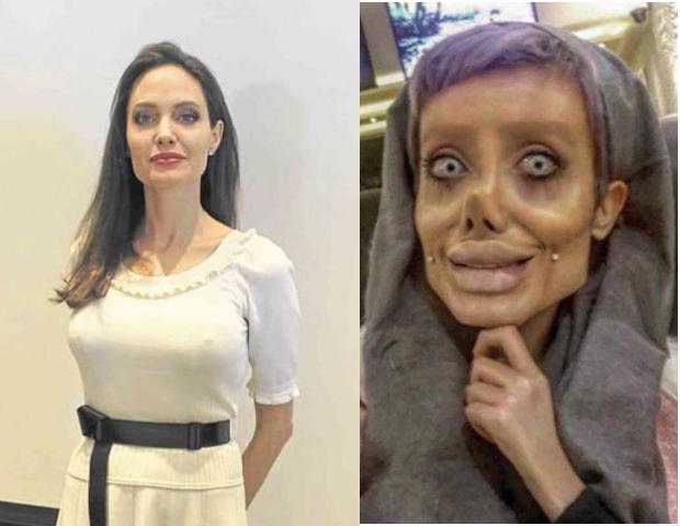 Persian iran facial plastic surgery