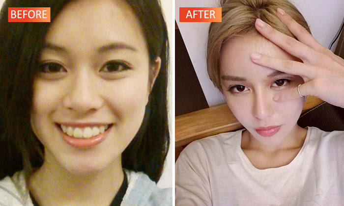 YouTube star underwent plastic surgery more than 30 times for