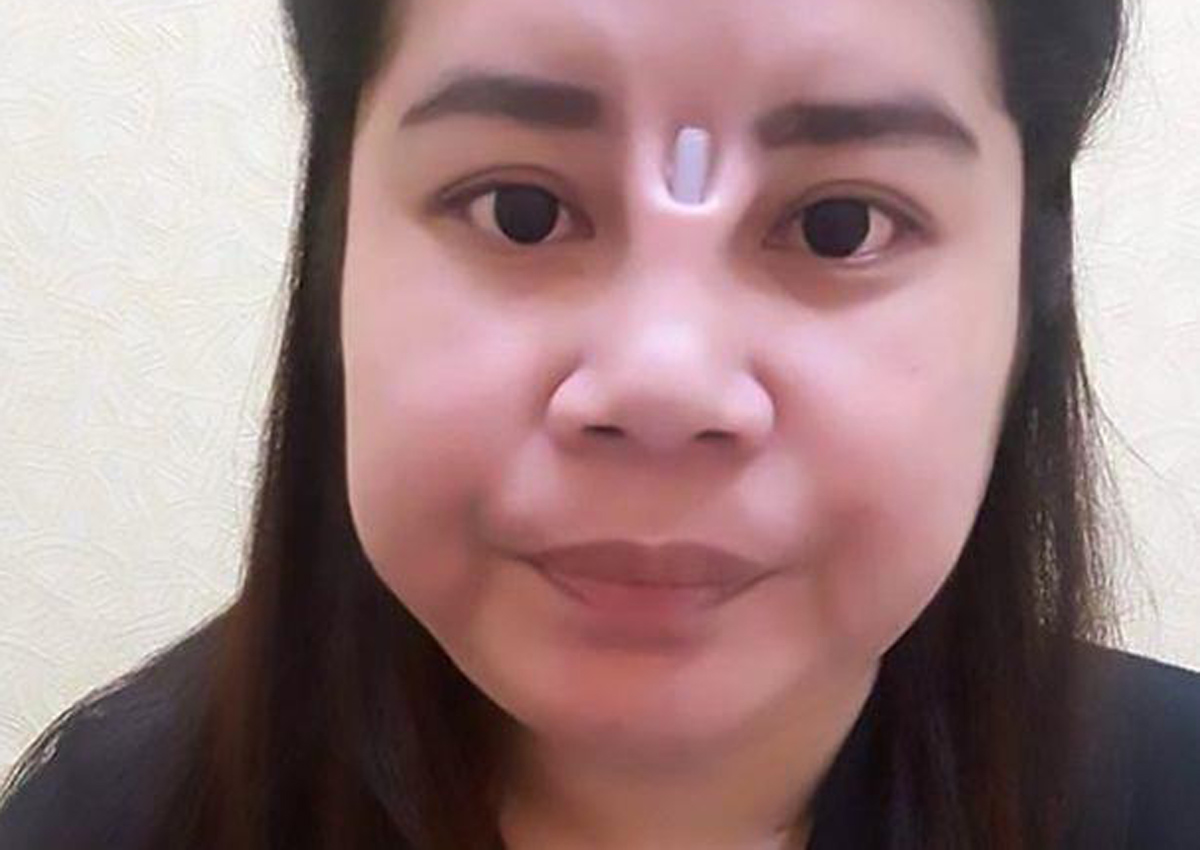 Botched surgery leaves Thai woman with additional hole in