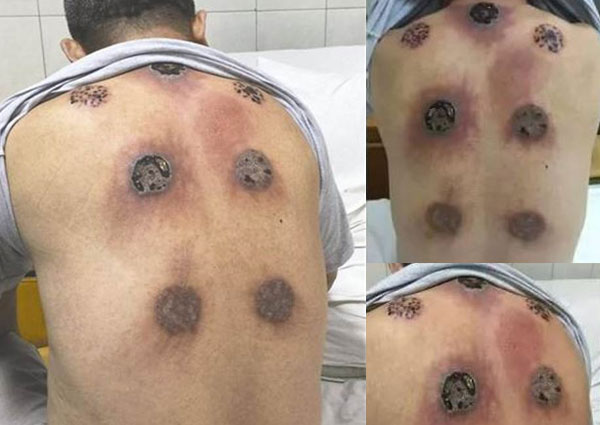 man ends up with black holes on back after 30 day cupping therapy