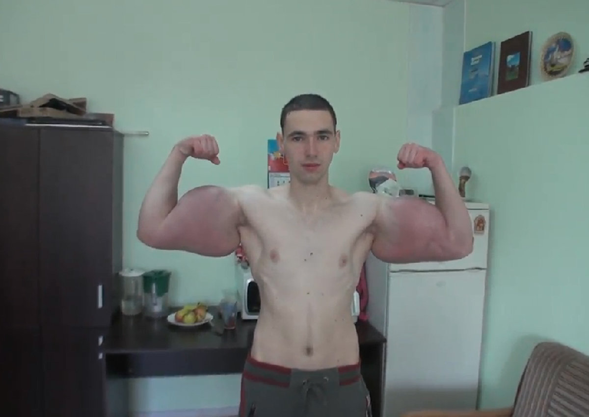 Russian Injects Oil Into Muscles Shows Off Hulk Like Arms