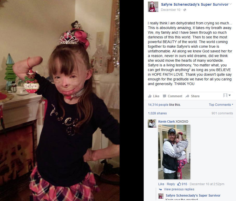 Badly burned girl's wish for Christmas cards comes true, World ...