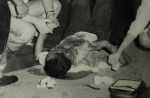 MacDonald House bombing survivor lost an eye and had multiple injuries - 4
