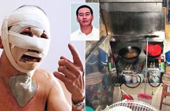 CNY fire burns 95 per cent of his face