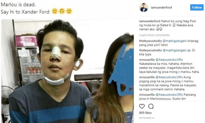 Thai man looks like a K-pop star after plastic surgery, even