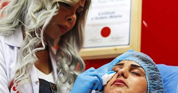 Beware! Fake facial fillers can wreck your face, Women News