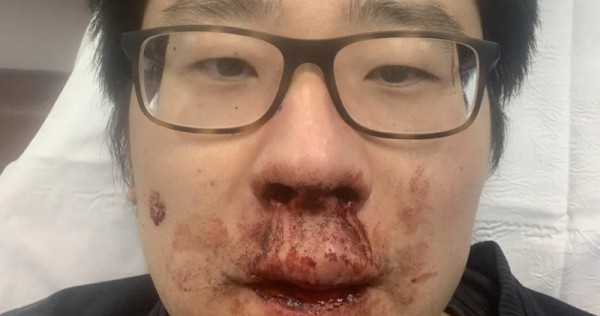 'Chinese virus, get out!': Lecturer from China beaten in Britain amid spike in hate crimes, World News