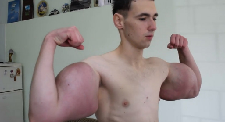 Russian injects oil into muscles, shows off Hulk-like arms