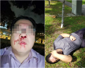 'Your grandfather's road ah?': E-bike rider punches pedestrian on Woodlands footpath