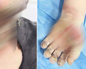 Disinfectant on Chinese man's body ignites near heater