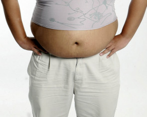 Overweight Asians with Covid-19 more likely to need intensive care, study finds
