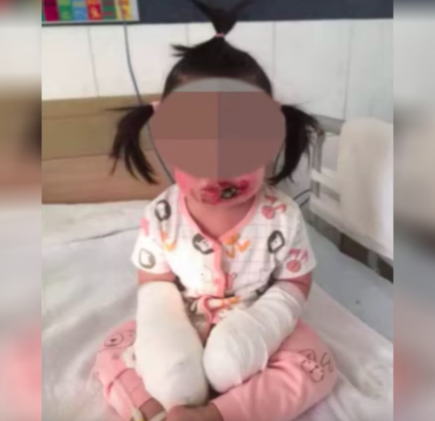 Chinese toddler's hand amputated after getting electrocuted at home