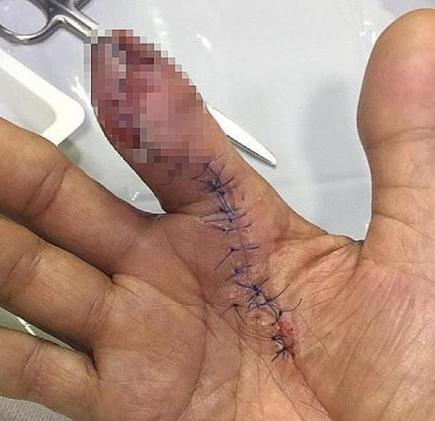 Man has part of finger amputated after being pricked while cleaning prawns, infected by flesh-eating bacteria