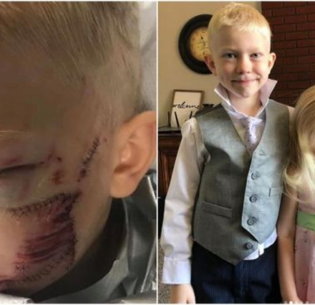 Avengers actor Chris Evans and other stars praise 6-year-old who saved younger sister from charging dog