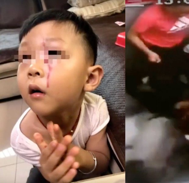 3-year-old boy in China gets mauled by Alaskan malamute in elevator