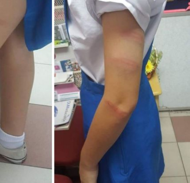 Schoolgirl in Malaysia left with red welts on arms and legs after alleged caning by teacher