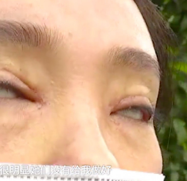 Botched double eyelid surgery leaves woman unable to shut her eyes