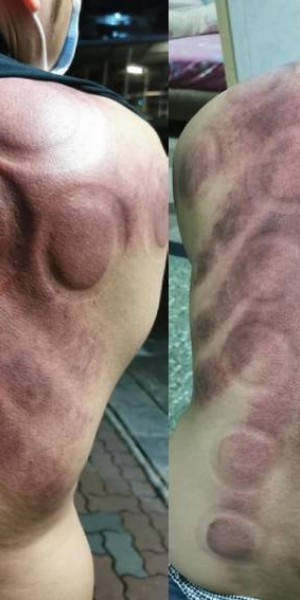 Cupping procedure at Aljunied massage centre leaves man in pain with angry red, blistered skin
