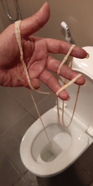 Thai man takes a dump, finds 10m-long tapeworm hanging from his butt