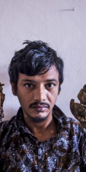 Bangladesh 'Tree Man' wants hands amputated to relieve pain