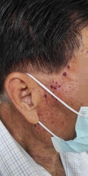Elderly man charged $4,500 for facial: Tampines salon says he had 220 oil seeds, police looking into matter