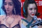 Chinese model's face 'lopsided' 2 years after plastic surgery