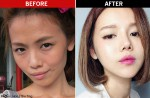 Blogger Qiu Qiu hits back at critics over plastic surgery