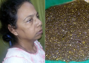 Indian woman's severe stomach pains reveal close to 12,000 stones in her gallbladder