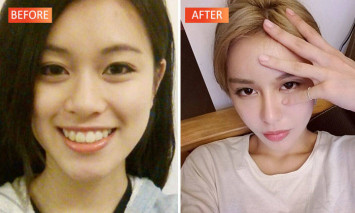 YouTube star underwent plastic surgery more than 30 times for boyfriend - and now regrets it