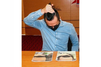 $10,000 hair transplant procedure in Taiwan leaves Malaysian man scarred