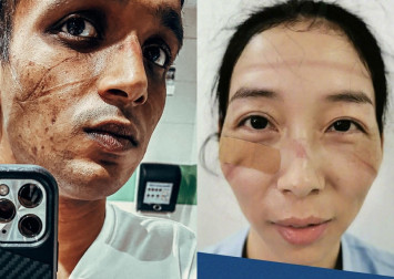 Healthcare workers hailed after pictures of their mask-scarred faces emerge online