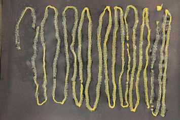 2.8m tapeworm found in Singapore patient who had no symptoms