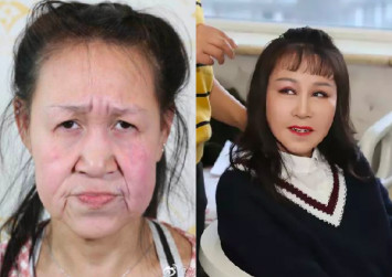 15-year-old Chinese 'grandma' gets plastic surgery to look her age