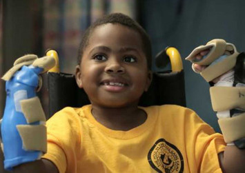 World's first child hand transplant a 'success'