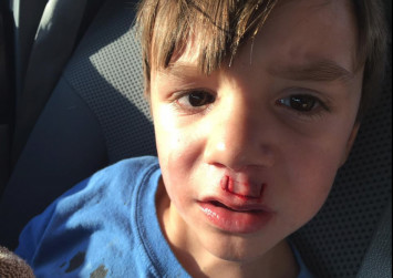 Father shares horror story of fidget spinner exploding in son's face