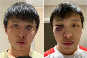 Singaporean student in London seeks eyewitnesses after coronavirus-related taunt and assault
