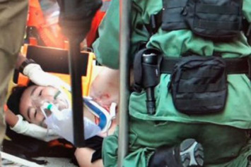 Hong Kong protester in serious condition after being shot by police in the chest